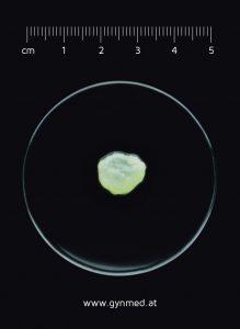 fruchtsack_5te_schwangerschaftswoche